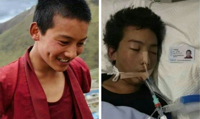 Tenzin Nyima(left), before he arrested by Chinese police and after he was tortured by Chinese polices(right). Photo: TPI